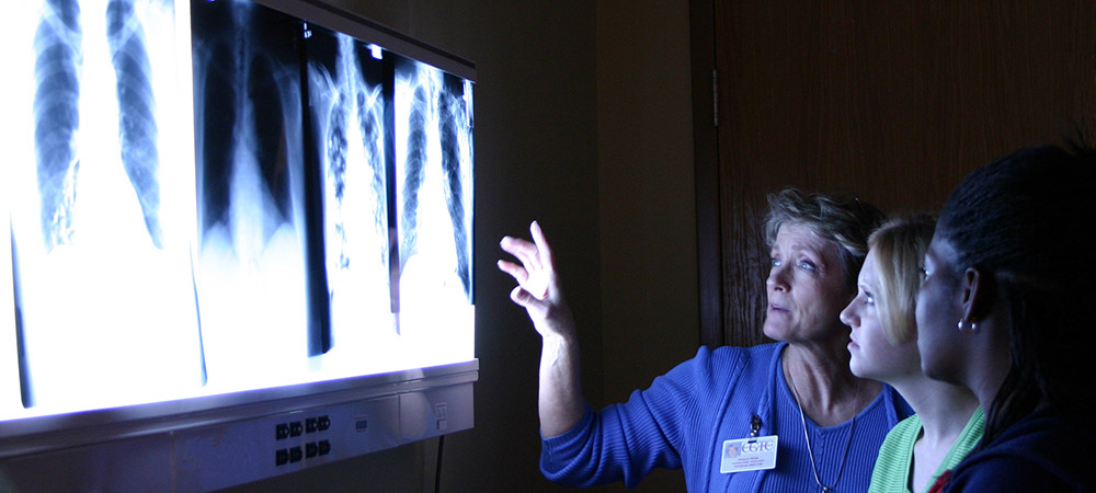 Radiologic Technology students looking at x-rays.